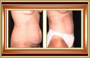 before and after tummytuck photo